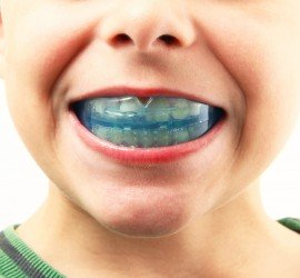 Orthodontic Mouthguard, sport guard, night guard
