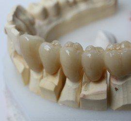 Metal Free Dental Crown, Crown and Bridge